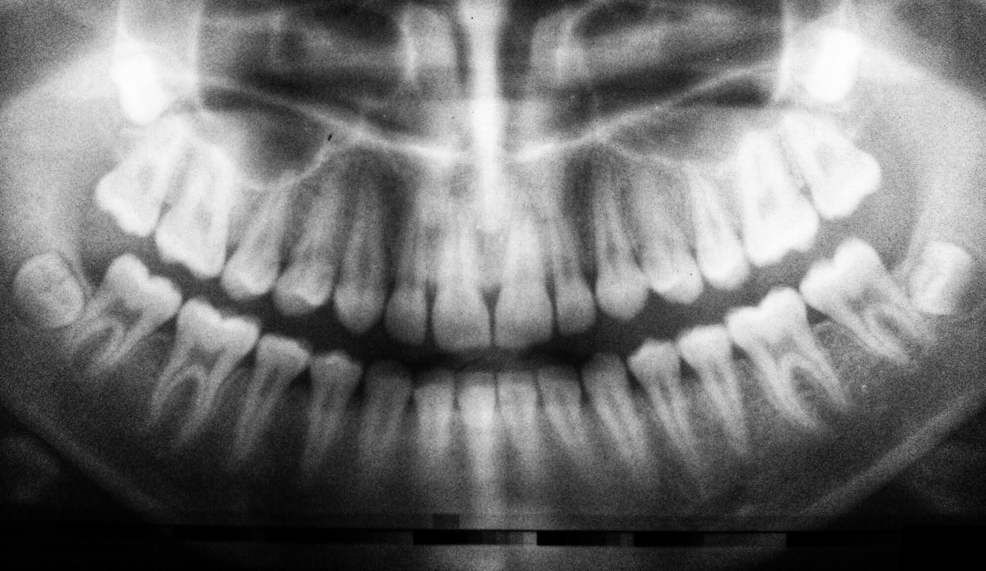 Röntgenbild für die Behandlung mit Alignern